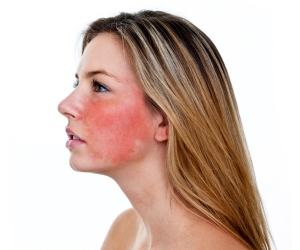 A importância de conhecer os tipos de pele