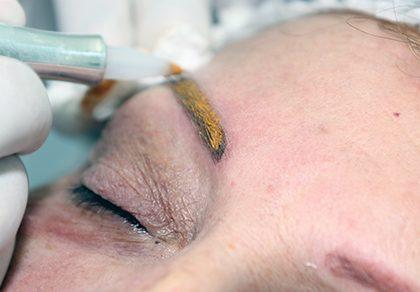 Obtenção da cor na Micropigmentação