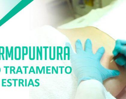 Dermopuntura para tratamento de estrias