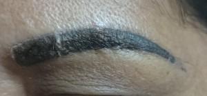 Principais causas da perda de pelos nas sobrancelhas