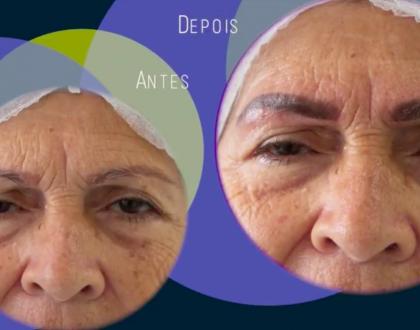 Dica da master Márcia Martins: neutralização de sobrancelhas em peles maduras