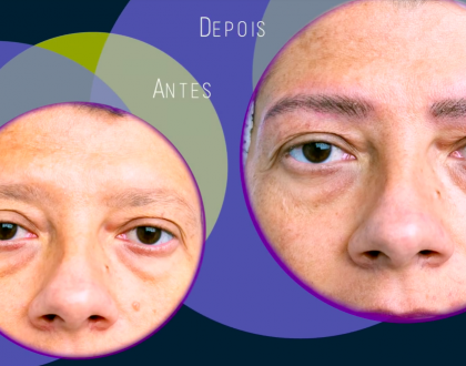 Márcia Martins apresenta o Arabesque Fils e explica essa novidade na Micropigmentação