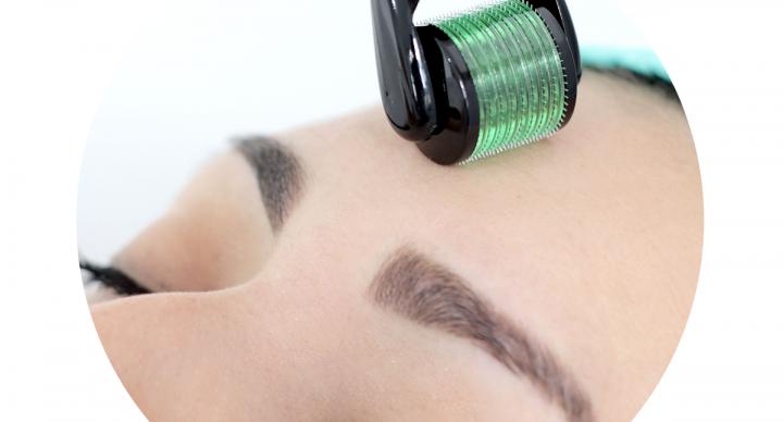 Micropuntura e Microagulhamento